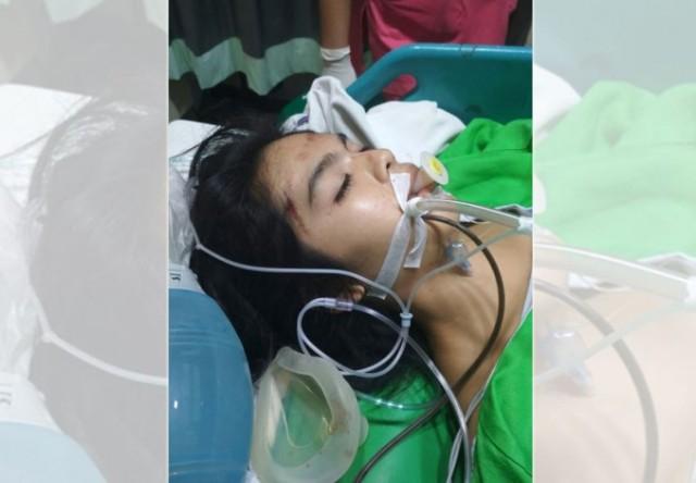 Wanita Muda Koma Terjatuh Dari Motor Setelah Di Jambret